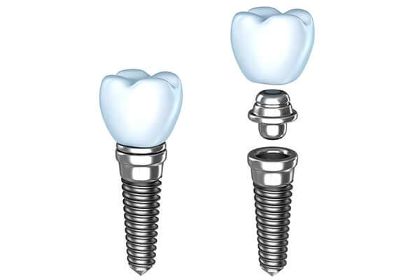 Single Tooth Dental Implants in Port Jefferson