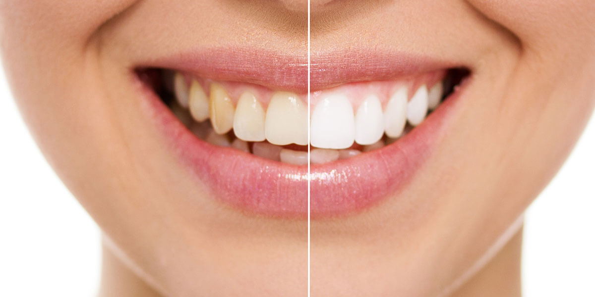 $50 OFF Teeth Whitening Referral Program